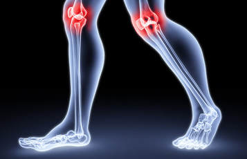 Frontal Knee Pain - A Physiotherapist Perspective - Donald